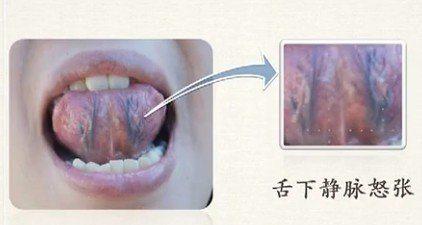 舌下经脉怒张.jpg